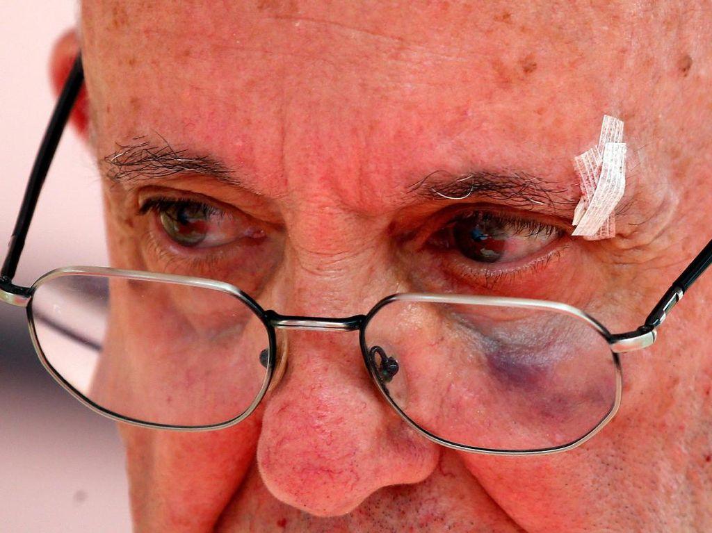 Begini Wajah Lebam Paus Fransiskus Usai Terbentur Mobil