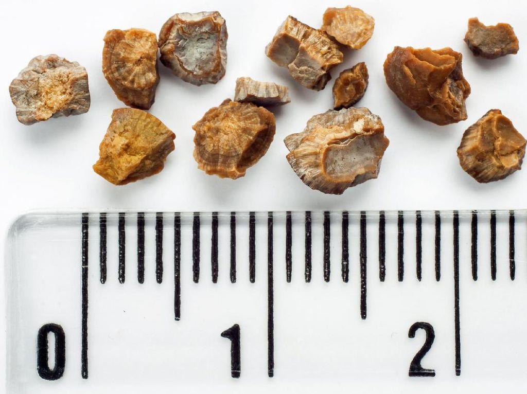 Deretan Fakta Seputar Batu Ginjal, Penyebab sampai Pencegahannya