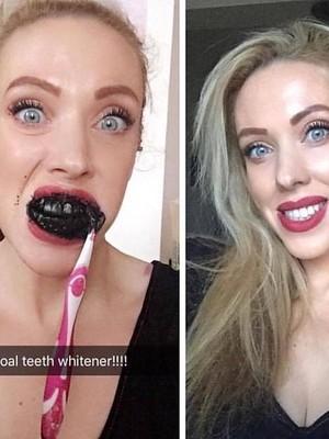 Tren Memutihkan Gigi dengan Arang Aktif, Baik atau Tidak?