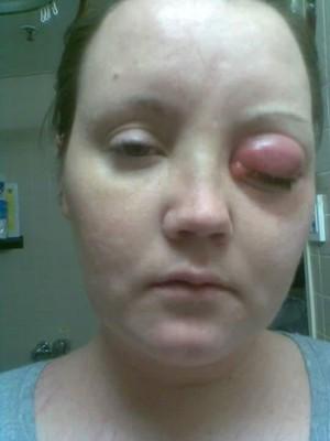 Cerita Wanita Berjuang 10 Tahun Melawan Parasit di Mata karena <I>Softlens</I>