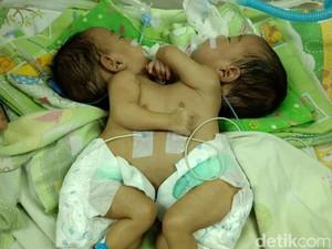 RSHS Rawat Bayi Kembar Siam Dempet Perut dan Dada Asal Bandung