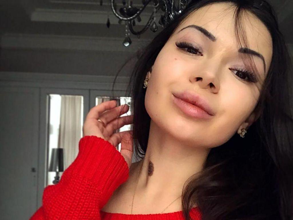Penabrak Mati Pejalan Kaki di Ukraina Ternyata Putri Konglomerat