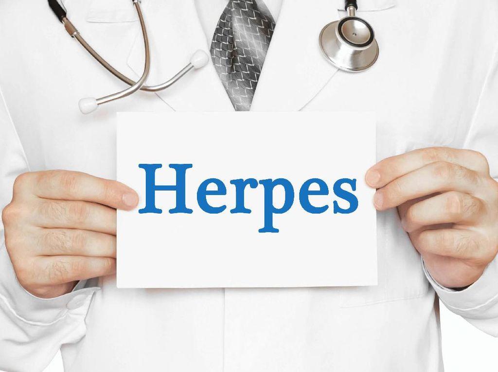 Ini Cirinya Terkena Herpes Genital