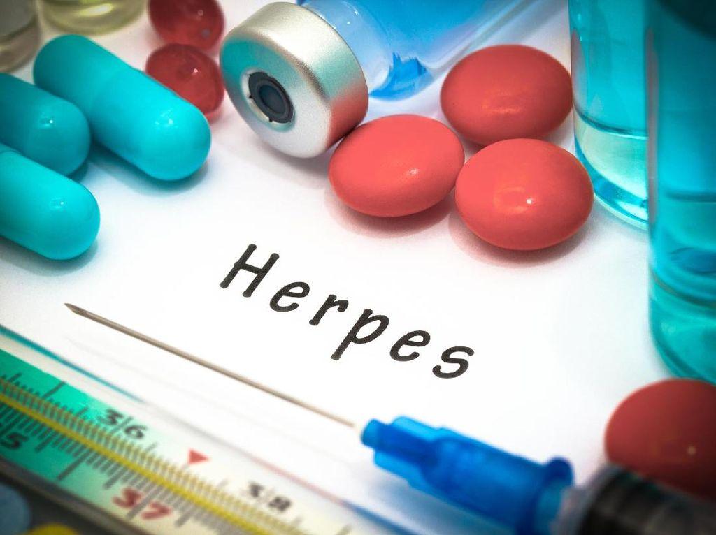 4 Fakta Terkait Penyakit Herpes Genital