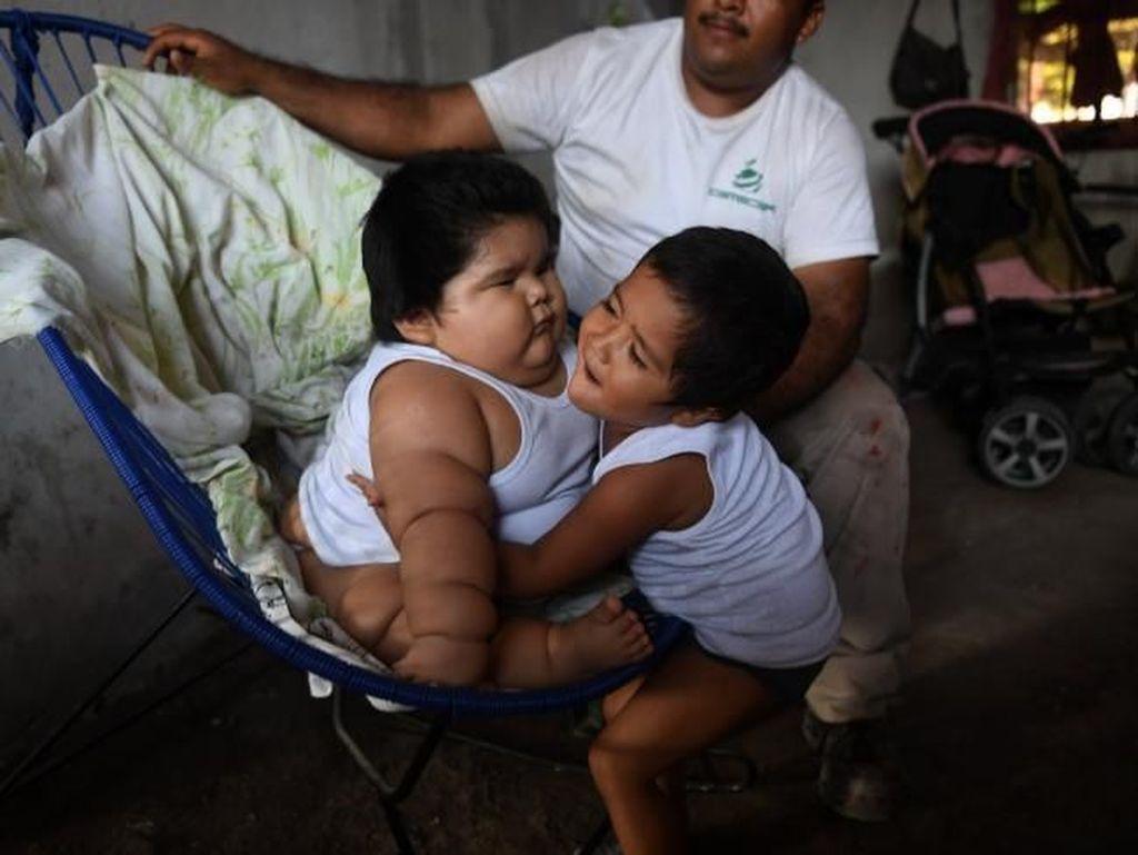 Idap Sindrom Langka, Bayi Raksasa Ini Bobotnya 28 Kg di Usia 10 Bulan