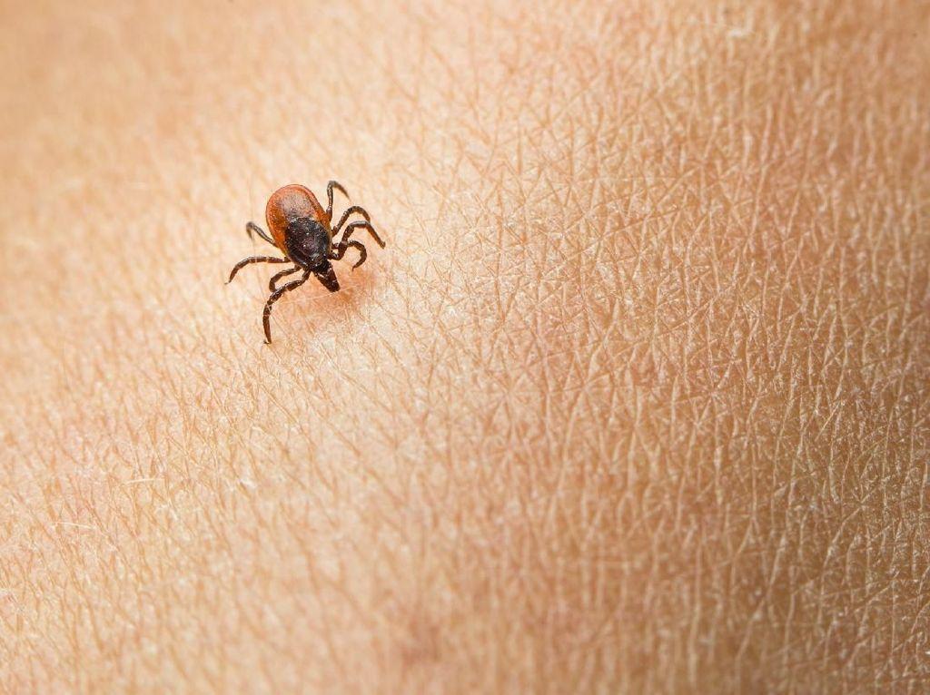 Dari Lumpuh Sampai Alergi, 4 Penyakit Ini Bisa Timbul karena Gigitan Kutu