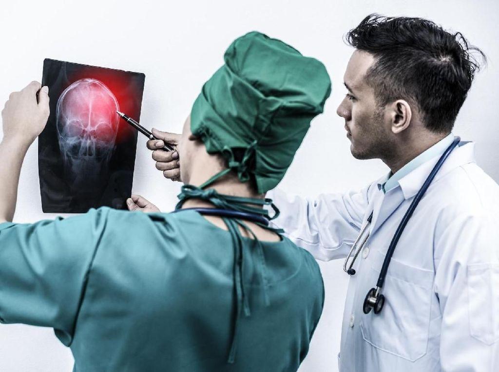 Langka! Pria Ini Terinfeksi Sifilis, Lalu Menjalar Sampai ke Otak