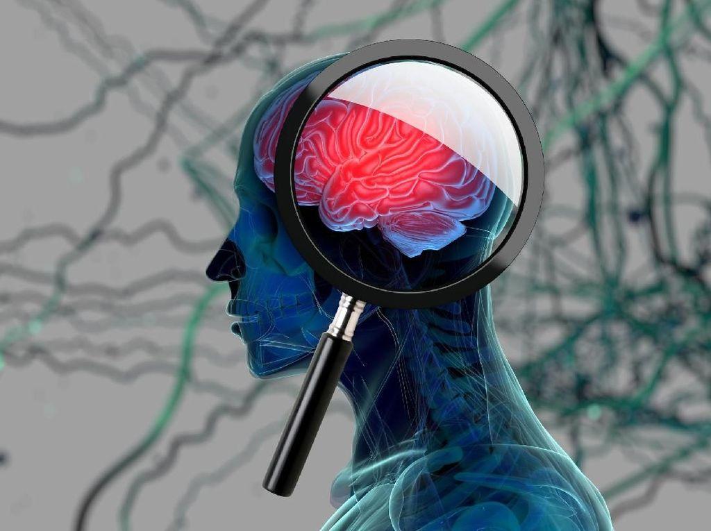 4 Gejala Awal Penyakit Alzheimer (2)