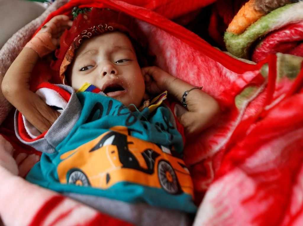 Mengenaskan! 5 Ribu Anak Tewas atau Terluka dalam Perang Yaman
