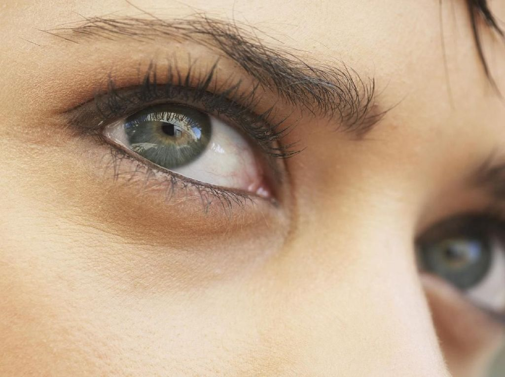 Kenapa Seperti Ada Cacing di Mata Saat Kepala Terasa Pusing?