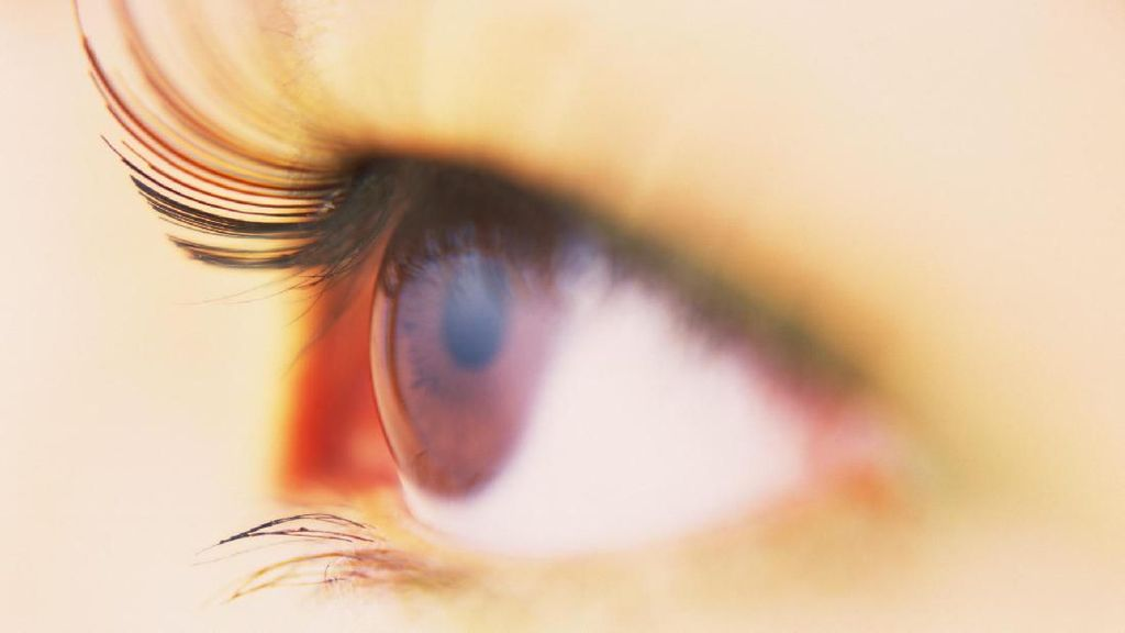 Mata Bocah Ini Dikira Kudisan, Ternyata Kena Kutu Babi