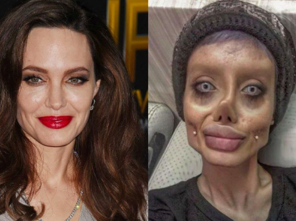 Foto: Ini Sahar, Wanita yang Viral karena Operasi Plastik Demi Mirip Jolie
