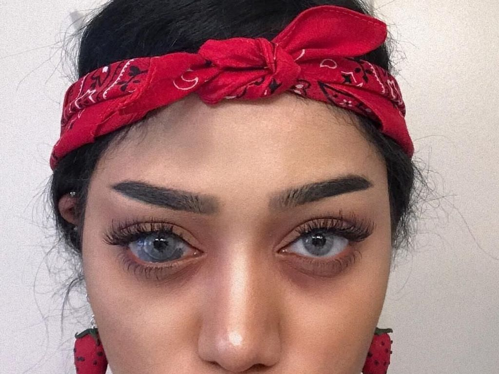 Potret Wanita Cantik dengan Tanda Lahir Unik di Mata