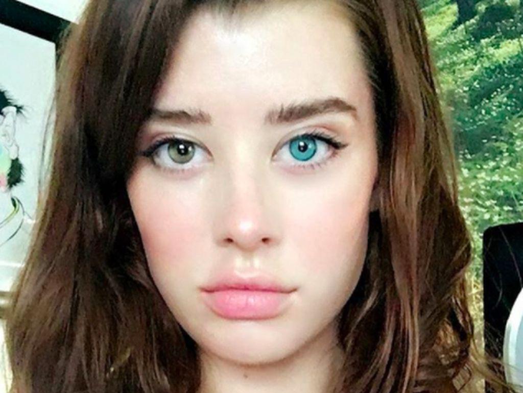 Matanya Beda Warna, Model Cantik Ini Pukau Netizen