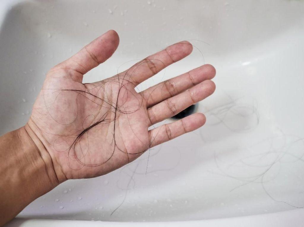 Wajib Tahu, 2 Faktor Utama Kerontokan Rambut dan Cara Mengatasinya