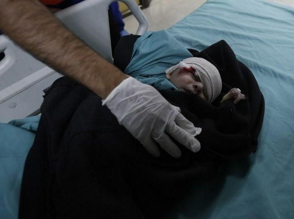 Foto: Balita Jadi Korban Serangan Balasan Israel untuk Roket dari Gaza