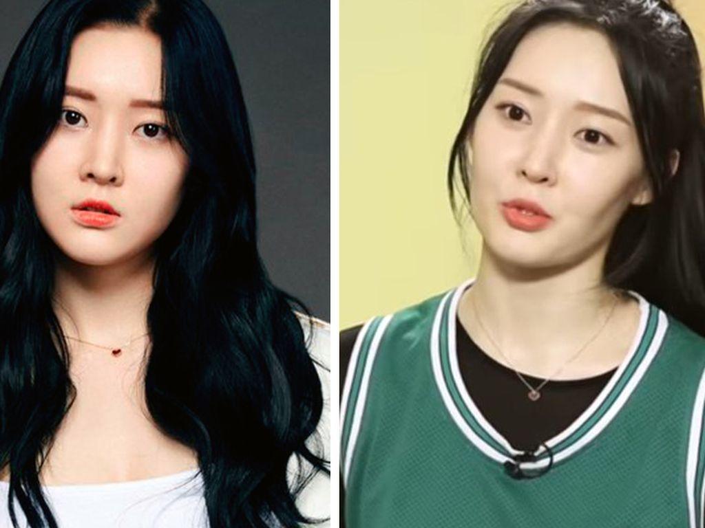 Berat Badan Turun 11 Kg dalam 3 Minggu, Artis K-pop Ini Trauma