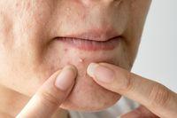 Cara Meredakan Calon Jerawat Merah Di Hidung