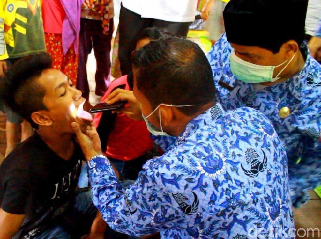 4 Gejala Penyakit Difteri dan Pencegahannya