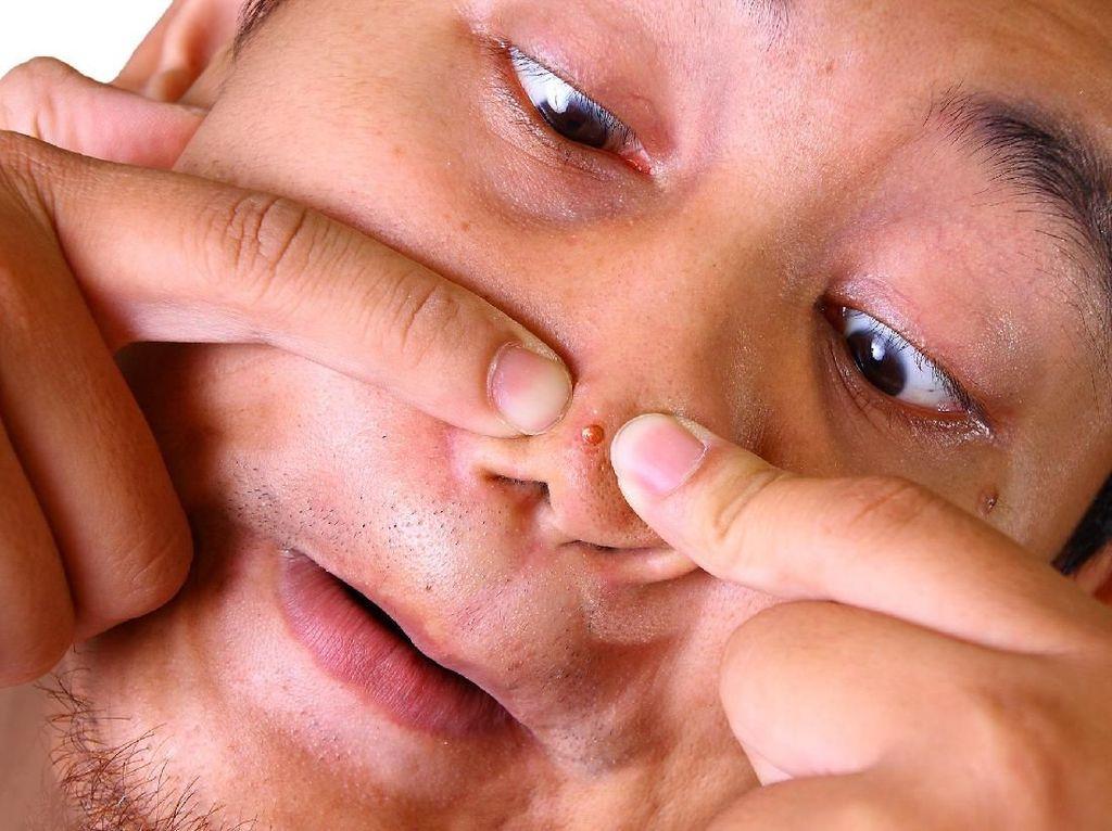 Letak Jerawat di Wajah dan Kaitannya dengan Masalah Kesehatan (2)