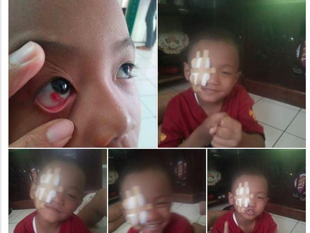 Kata Dokter Soal Perdarahan di Mata Akibat Main Gadget