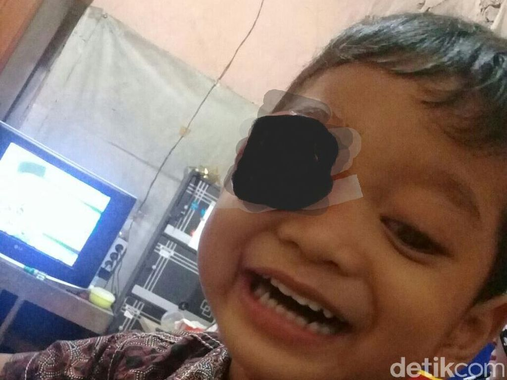 Rizwan, Bocah 3 Tahun di Kudus Idap Tumor Mata Sebesar Bola Tenis
