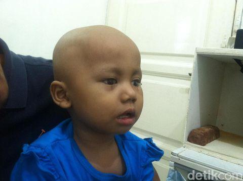 Salah satu pasien anak yang mendapatkan mata palsu.