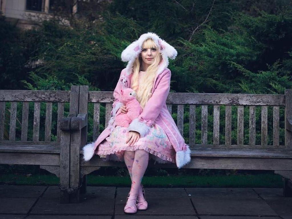 Foto: Kisah Jade, Barbie di Kehidupan Nyata yang Idap Penyakit Langka