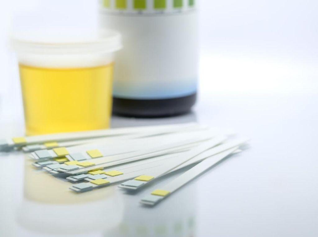 Ragam Warna Urine dan Artinya Bagi Kesehatan Tubuh