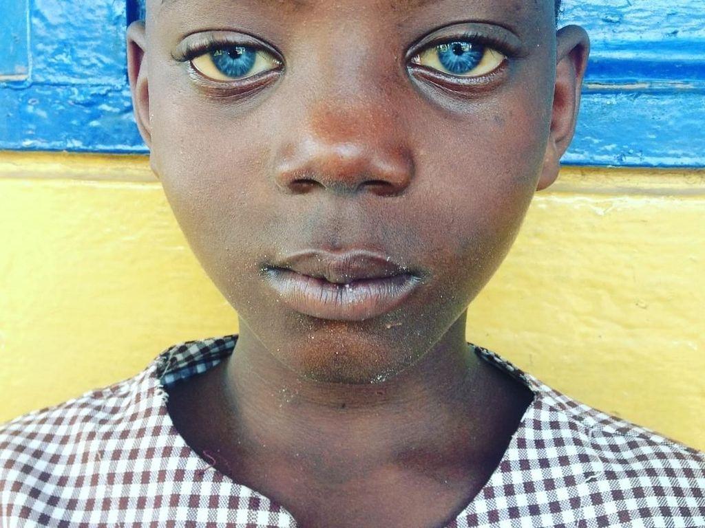 Foto: Mata Biru Menyala Indah Para Penyandang Sindrom Waardenburg