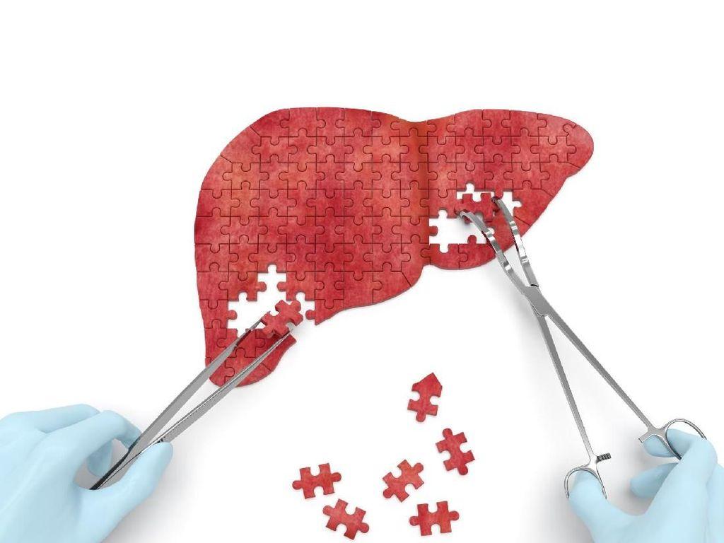 Waspada! 5 Tanda Liver yang Tidak Sehat