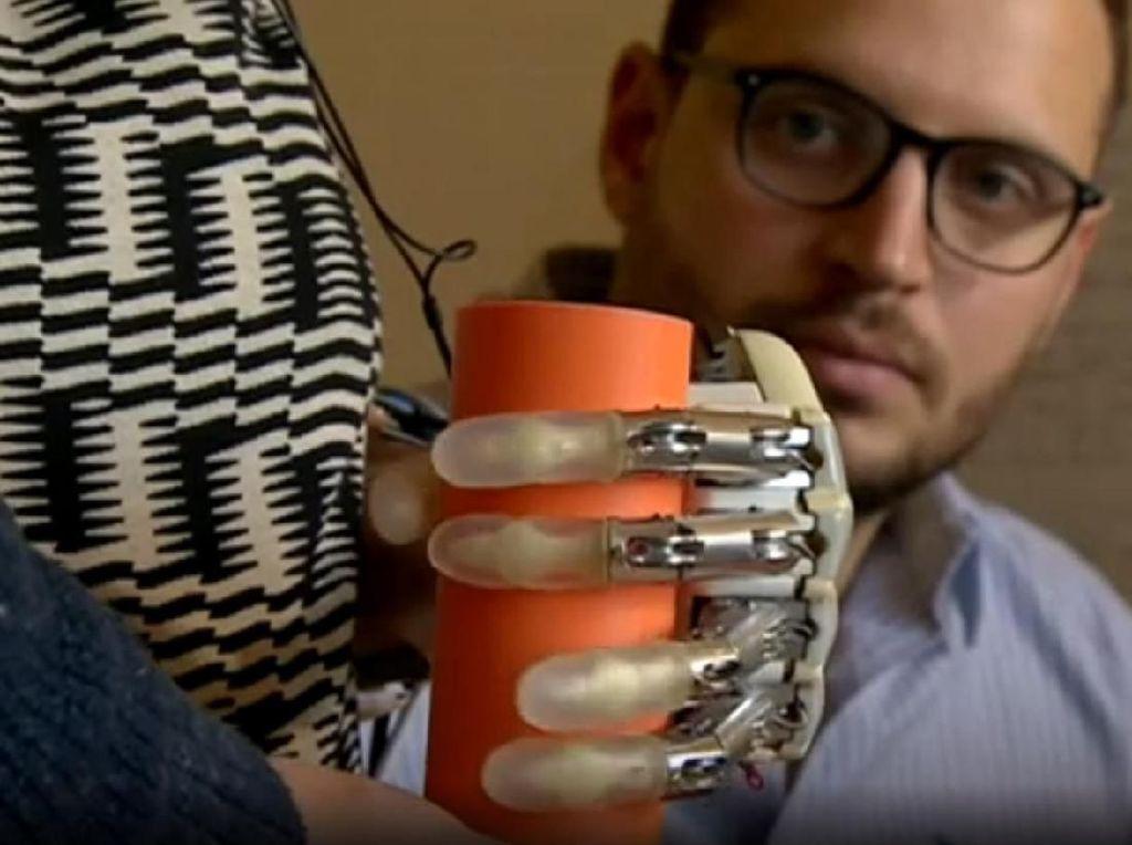 Potret Tangan Bionik yang Bisa Rasakan Sensasi Sentuhan