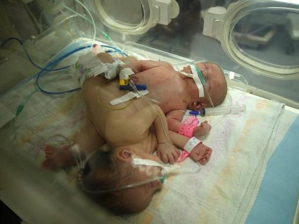 Haru, Kondisi Bayi Kembar Siam asal Palestina yang Akhirnya Terpisah