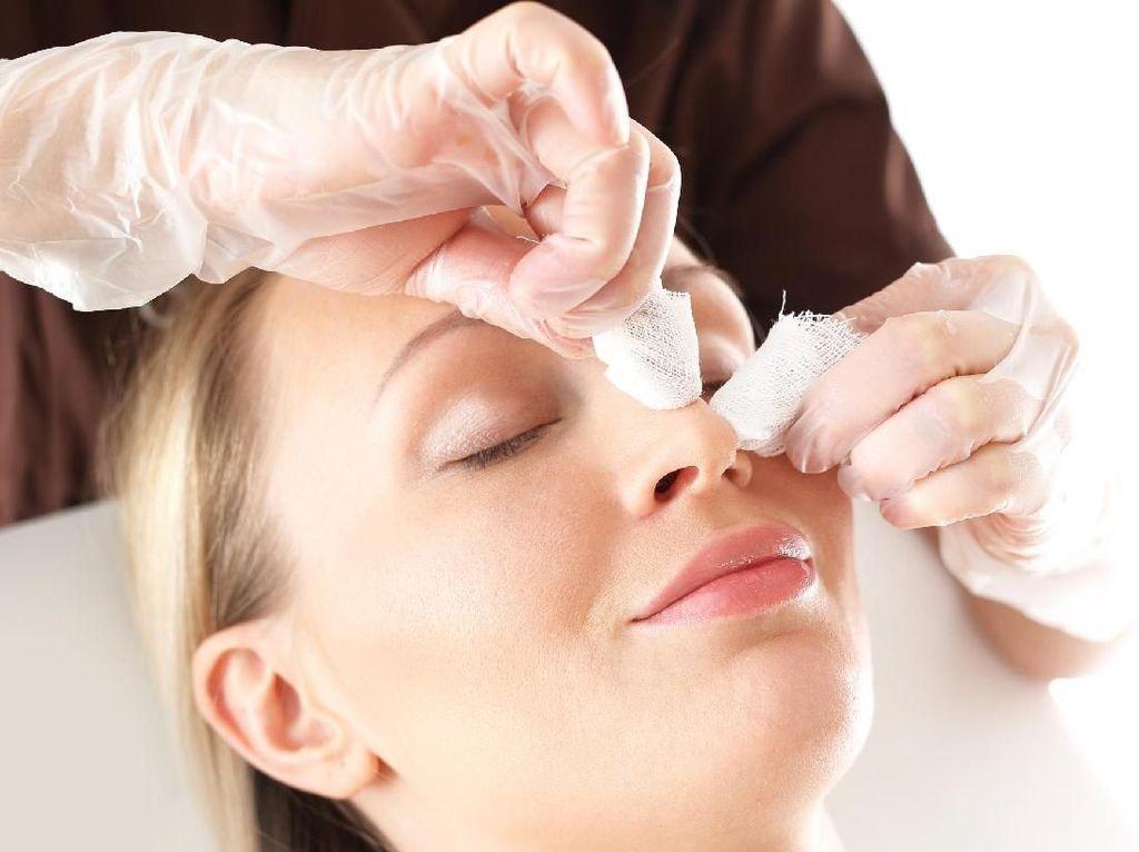 Facial Tradisional atau Laser? Ini Perawatan Kulit yang Dipilih Wanita