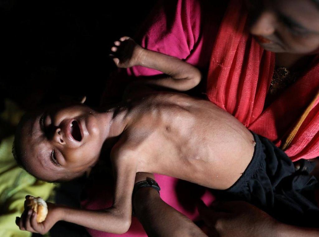 Potret Anak-anak Rohingya yang Menderita Gizi Buruk