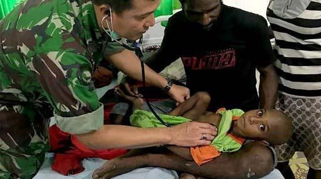 Begini Kondisi Balita Korban Gizi Buruk di Kabupaten Asmat