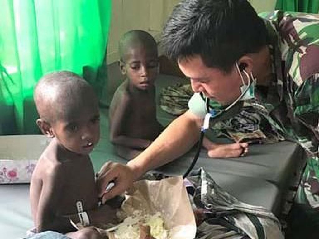 Marak Gizi Buruk di Pelosok Papua, Jokowi akan Relokasi Warga ke Kota