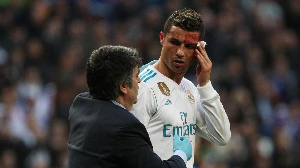 Wajah Berdarah Kena Tendangan Lawan, Ronaldo Pinjam Ponsel untuk Periksa Lukanya