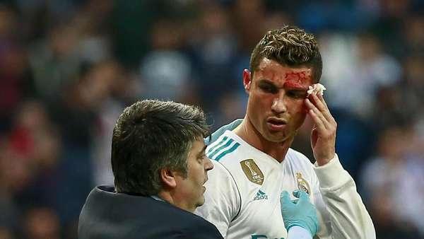 Momen Ronaldo Bersimbah Darah Saat Mencetak Gol