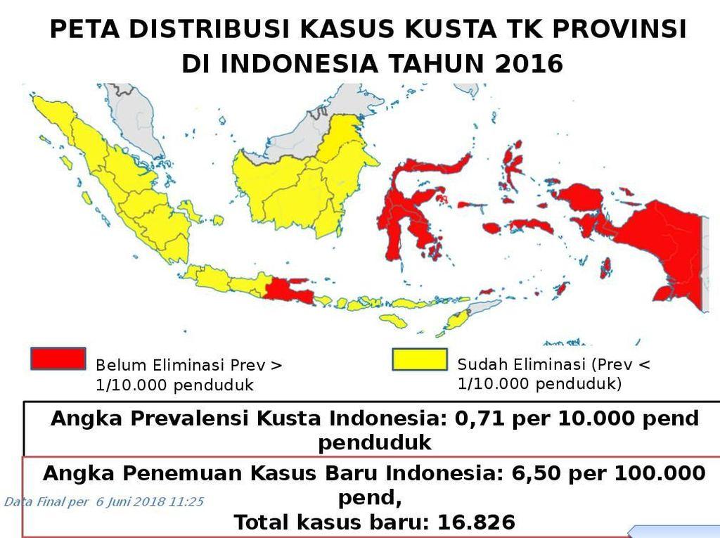 Indonesia Bertekad Eleminiasi Kusta di Tahun 2019