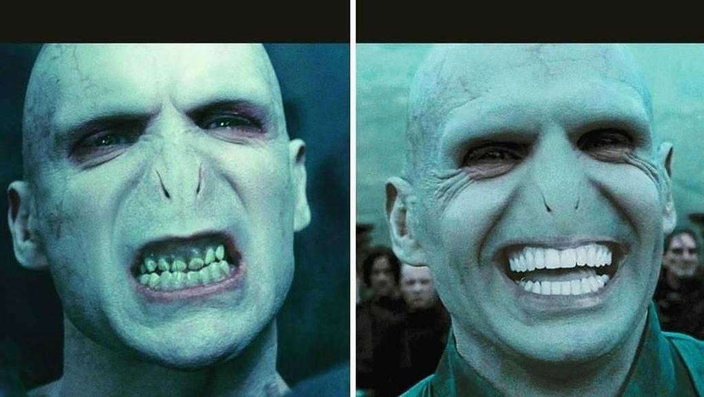 Kumpulan Meme Lucu Ini Jadi Pengingat Pentingnya Periksa Gigi