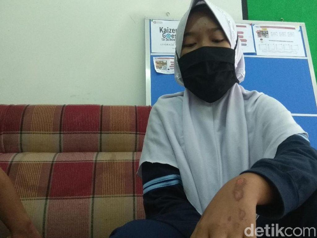 Siswi SMA di Karawang Ini Nekat Loncat dari Angkot Ugal-ugalan