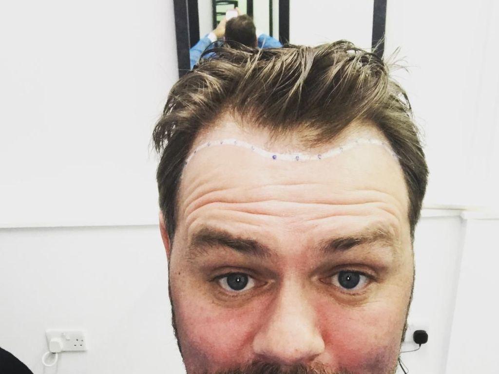 Mulai Botak, Brian McFadden Eks Westlife Lakukan Transplantasi Rambut