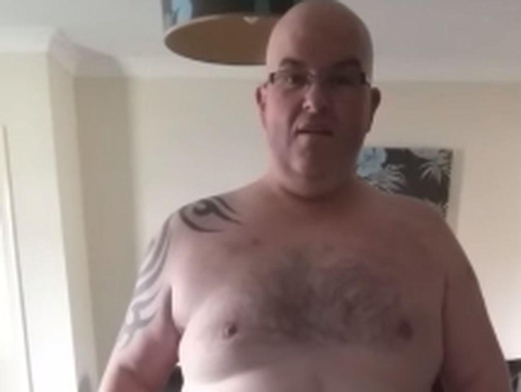 Mantan Bodyguard Artis Mengidap Hernia 31 Kilogram, Terbesar di Dunia