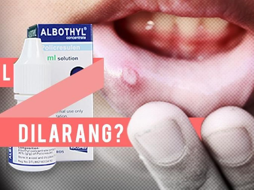 Paling Ngagetin di 2018: Kontroversi dr Terawan, Heboh Albothyl Dilarang
