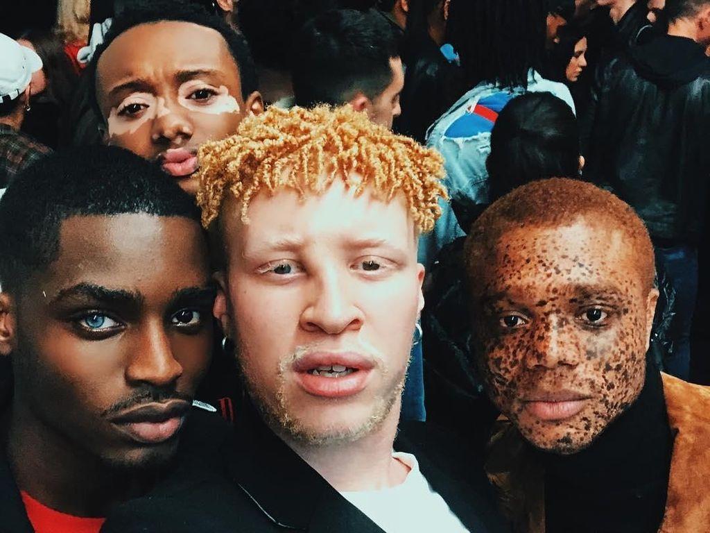 Dari Vitiligo hingga Albino, Empat Model Berpose dengan Berbagai Kondisi Kulit