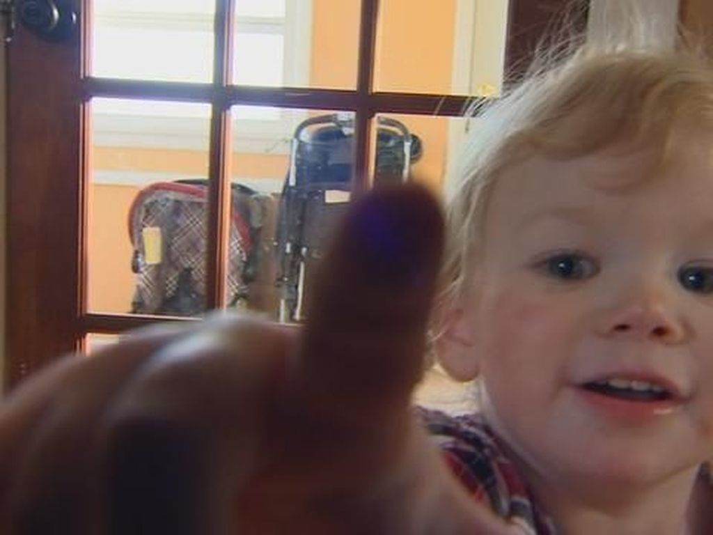 Foto: Ivy Angerman, Bocah Umur 18 Bulan Yang Mengidap Alergi Air Langka