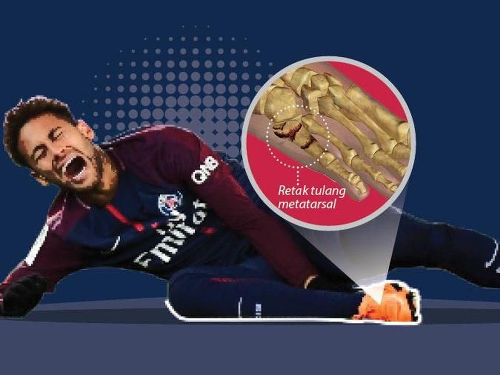 Duh, Neymar!