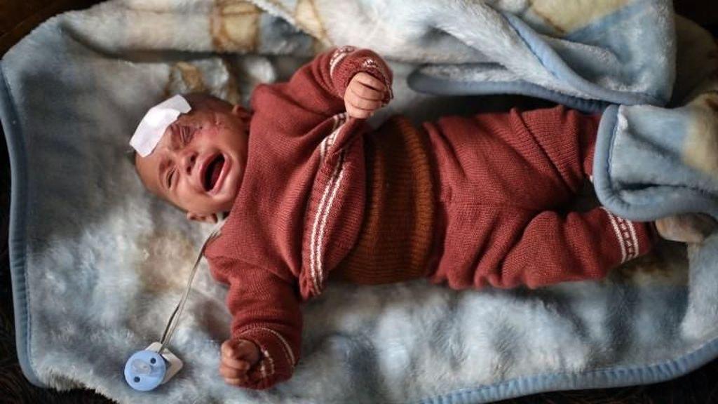 Foto: Bayi Karim Bermata Satu yang Sembunyi karena Serangan Assad