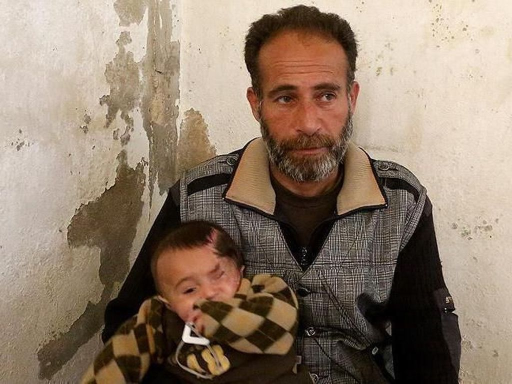Hindari Serangan Rezim Assad, Bayi Karim Tinggal di Bawah Tanah